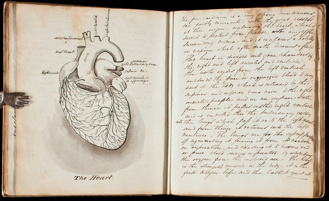 19th century medical manuscript with drawings
