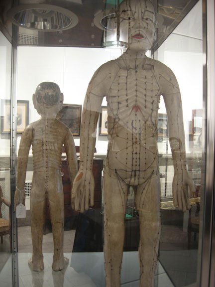 494A: Two Chinese acupuncture dolls, 19th century, pain