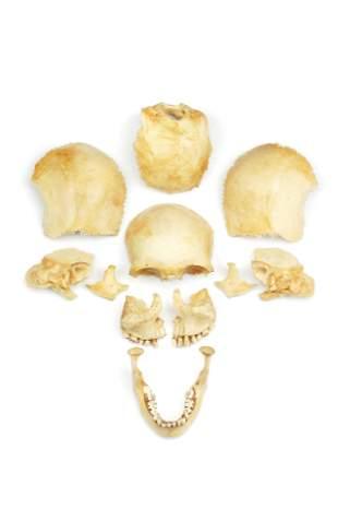 Medical Students Disarticulated Human Skull,