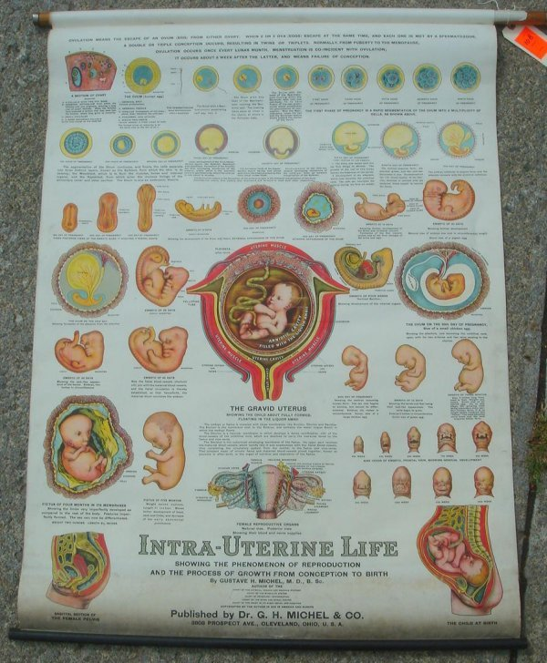 10B: INTRA-UTERINE LIFE ROLLDOWN MAP SHOWING THE PHENOM