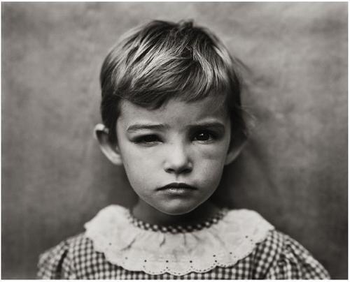 2: Sally Mann (b. 1951) Damaged Child, 1984