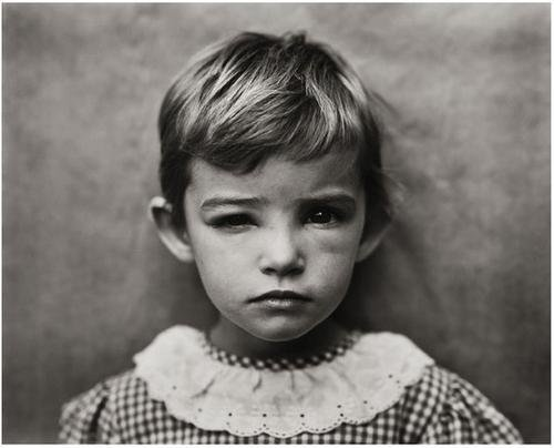 2: Sally Mann (b. 1951) Damaged Child, 1984