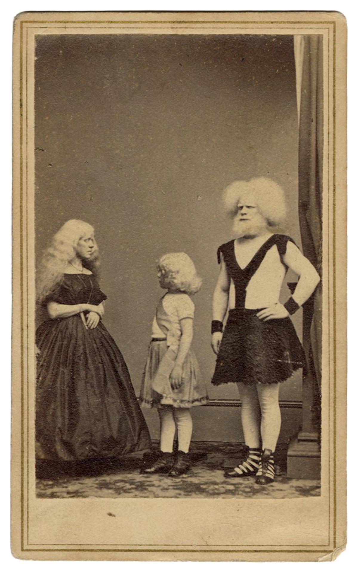 Eliophobus Family of Albinos CDV. New York: E. & H.T.