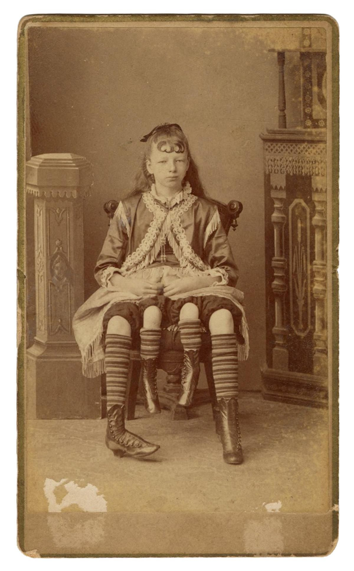 CDV of Myrtle Corbin, Four-Legged Girl. New York: