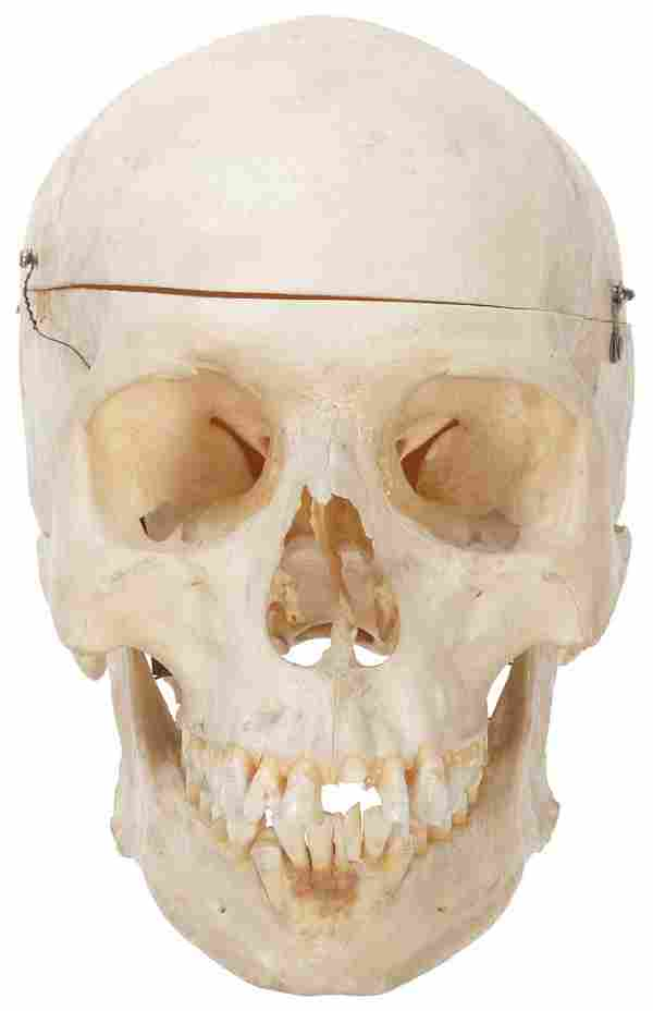 Anatomical Human Skull with Articulated Jaw. Circa