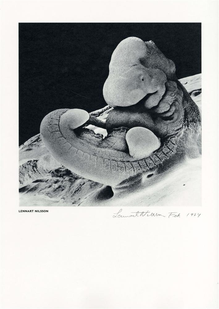 1056: LENNART NILSSON - Vintage photogravure