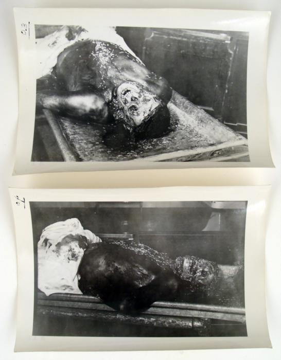 Josef Mengele Experimente
